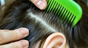 Зуд кожи головы причины ,появления, лечение.